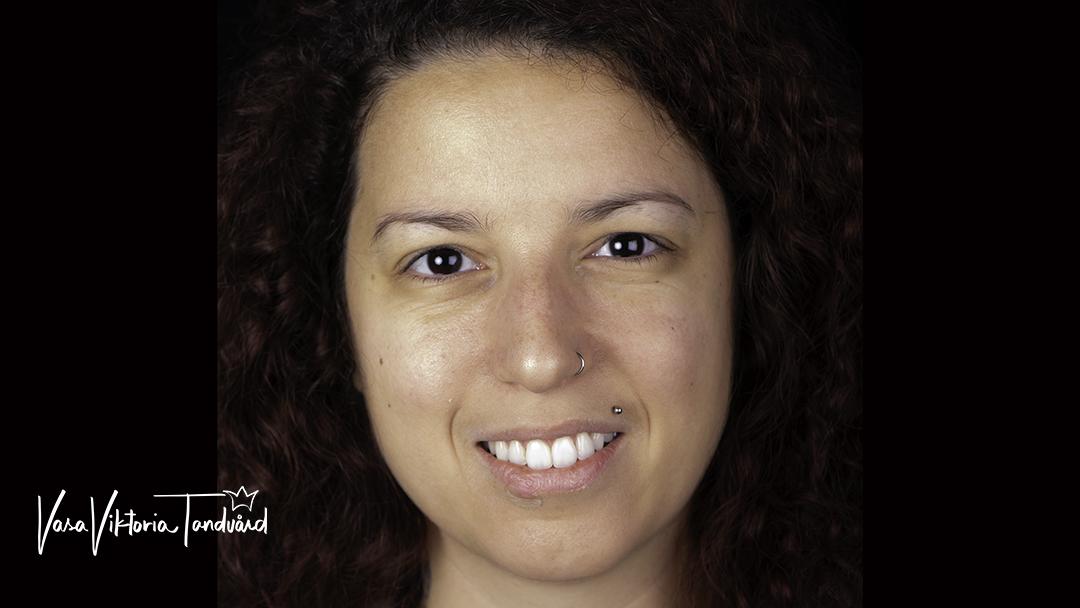 efter behandling av tandreglering
